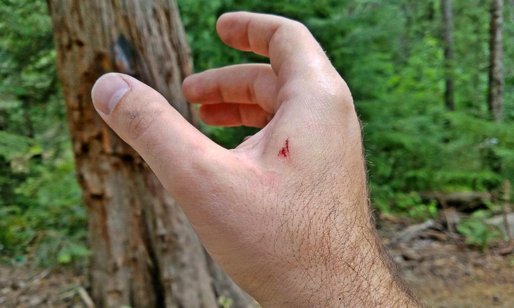 slide bite