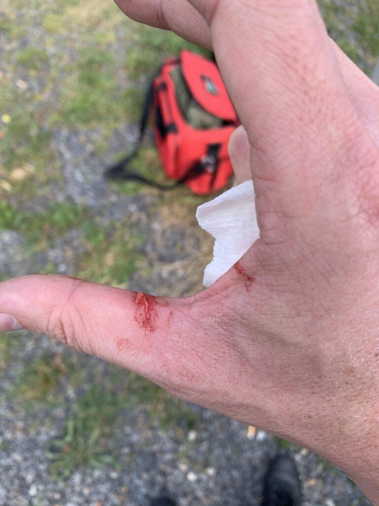 Slide bite injury